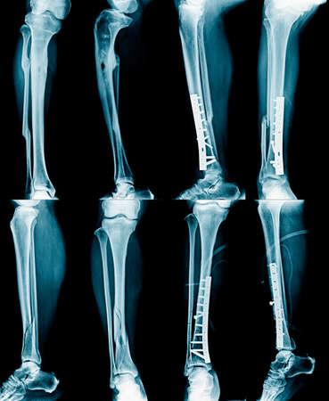 radiographie de la jambe, fracture et jambe fixes Banque d'images