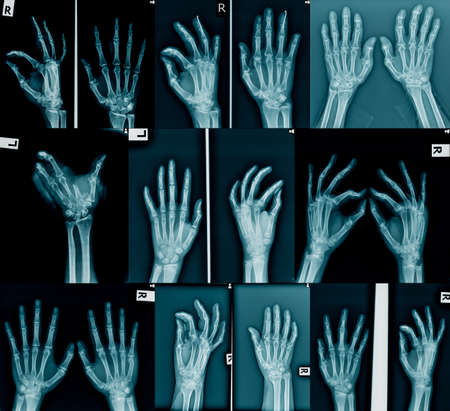 collection x-ray of hand