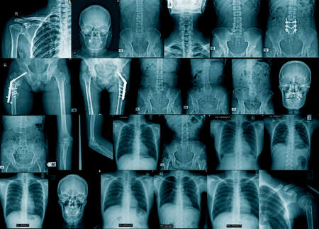 collection x-ray image chest, skull, hip replacement, spine fracture and fixed