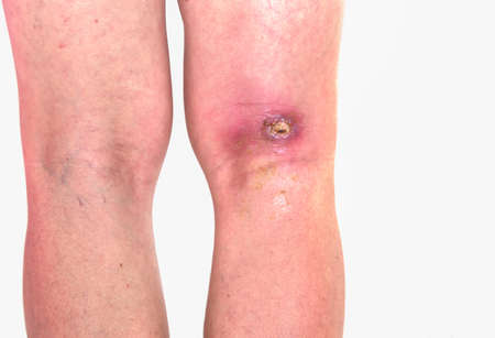 abcess popiteal area, inflammation of popiteal zone at right leg, infected wound righ knee bent