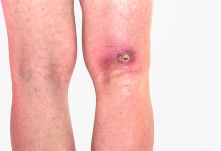 Abzess Popitealbereich, Entzündung der Popitealzone am rechten Bein, infizierte Wunde am rechten Knie gebeugt Standard-Bild