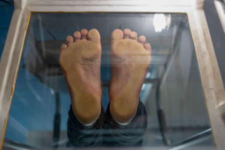 Foot screen, diabetes patient standing on podoscope show normal weight bearing and no deformity of toes, foot print for height weight diagnosis Stock fotó