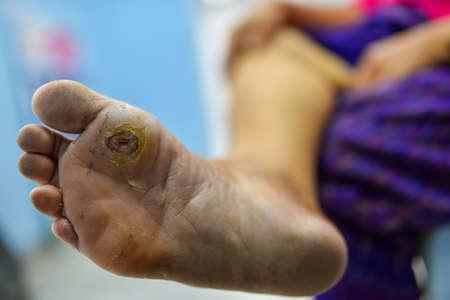pie diabético en la planta del pie y la planta del dedo gordo del pie, pantalla de pie en pacientes diabéticos para prevenir complicaciones