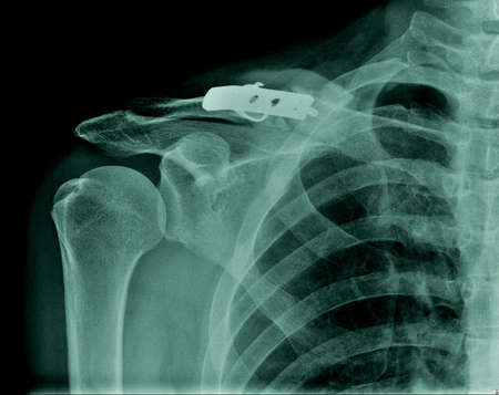x-ray clavicle fracture with post operation fixation