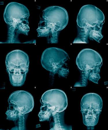 skull x-ray image