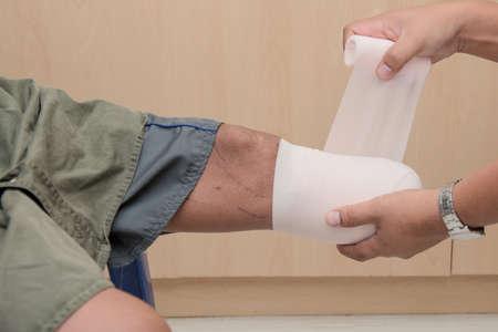 bendaggio sotto il moncone del ginocchio, BKA amputato con preparazione della protesi