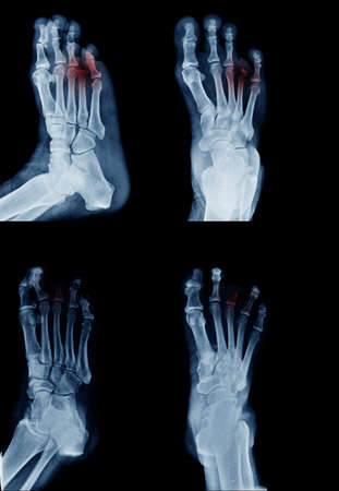 amputee foot x-ray image in many view and many case