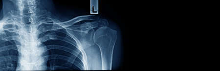 x-ray clavicle fracture, accident of old man at shoulder part