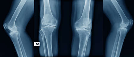 x-ray image of OA knee in blue tone Stock Photo