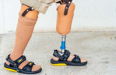 bilateral amputee walking and gait training Reklamní fotografie