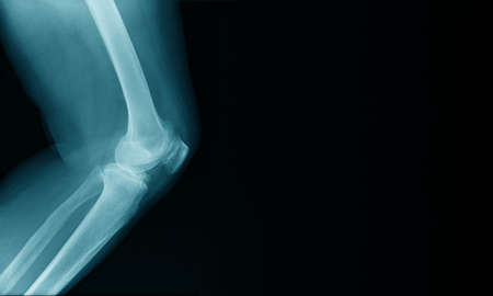 x-ray image of OA knee with banner design