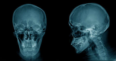 skull x-ray image, head injury x-ray for lession dignosis Imagens