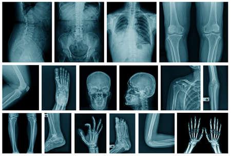 kolekcja zdjęć rentgenowskich w odcieniu niebieskim