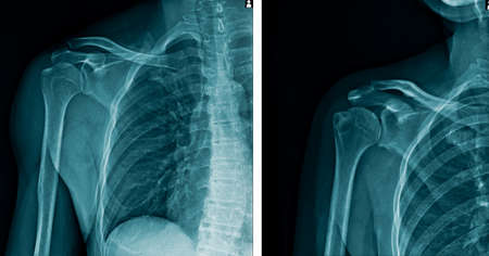 x-ray image human shoulder in blue tone