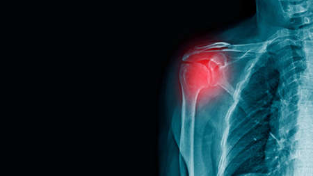 x-ray image of shoulder with scapular fracture