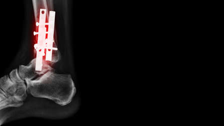 x-ray image of tibia bone with internal fixation on black background 版權商用圖片