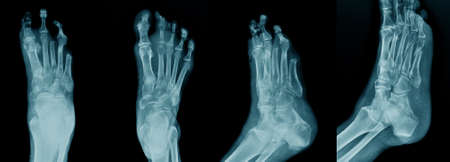 collection foot  fracture x-ray image in blue tone