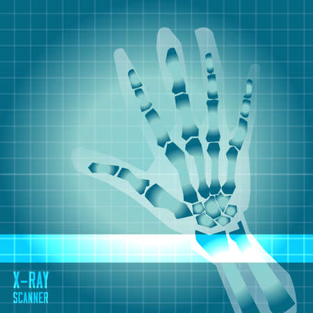 radiography: X-ray of human hand with scanner light - vector illustration