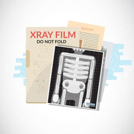 Menselijke röntgenfilm met papier en map. Medische objecten, bestand en document - vectorillustratie.