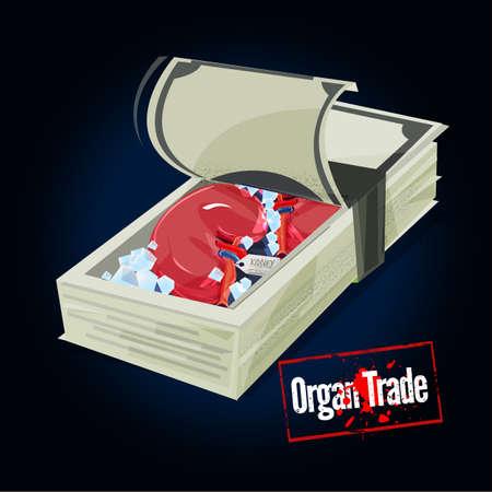 Stack of money with human Kidney inside. organ trade concept - vector illustration Illustration