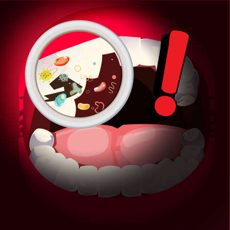 magnifier zoom in oral cavity and discovered  a lot of bacteria. dirty oral and teeth - vector illustration