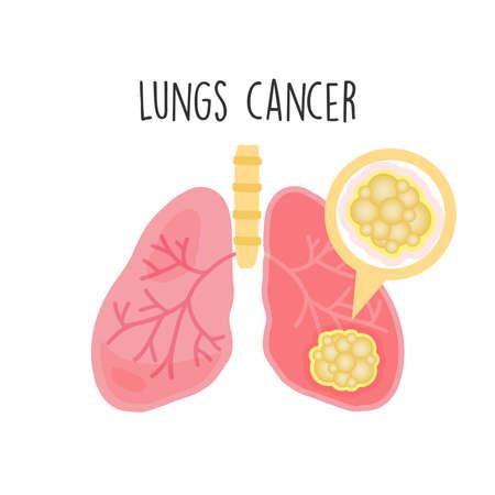Illustration vectorielle plane du cancer des poumons.
