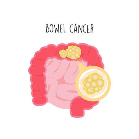 Bowel Cancer flat vector illustration.