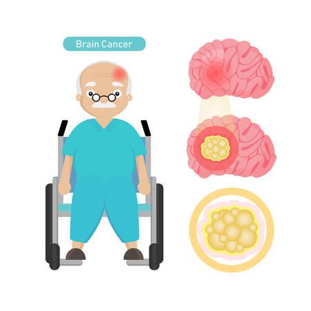 Man Patient atteint d'un cancer du cerveau en style cartoon.
