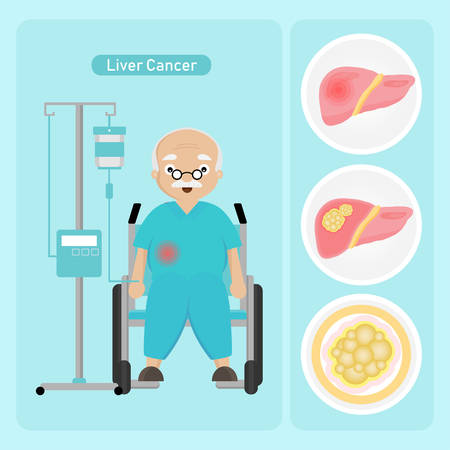 Senior man Patient with Liver Cancer in cartoon style.