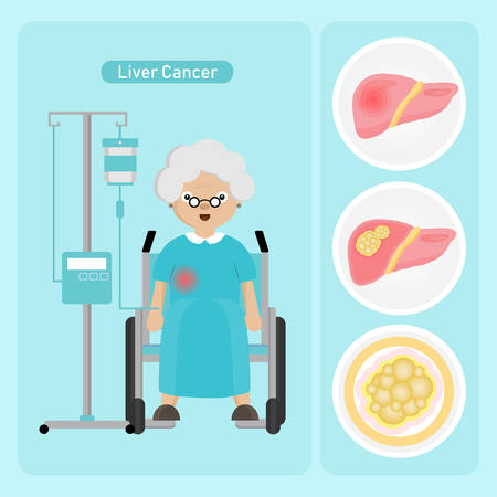 Senior woman Patient with Liver Cancer in cartoon style. Illustration