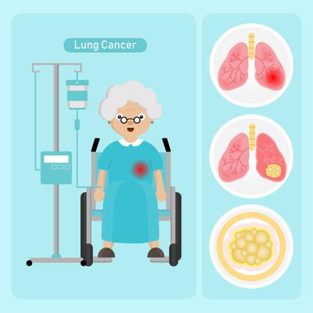 Paciente mujer mayor con cáncer de pulmón en estilo de dibujos animados. Ilustración de vector