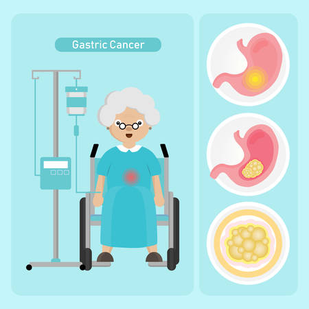 Senior woman Patient with Gastric Cancer in cartoon style.