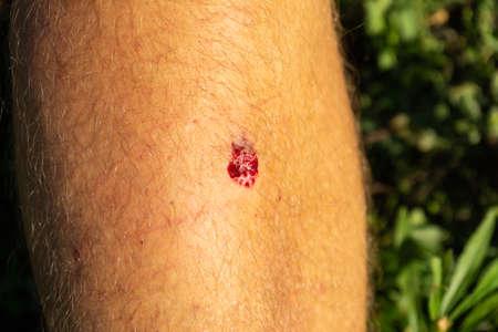 Bruised wound injury on man knee background. Copy paste