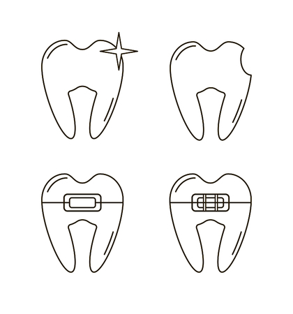 brace: Vector set  of clean tooth, teeth with brace and caries Illustration
