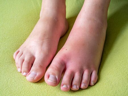 swollen foot after an insect bite