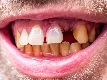 Close up of destructed teeth Stock Photo