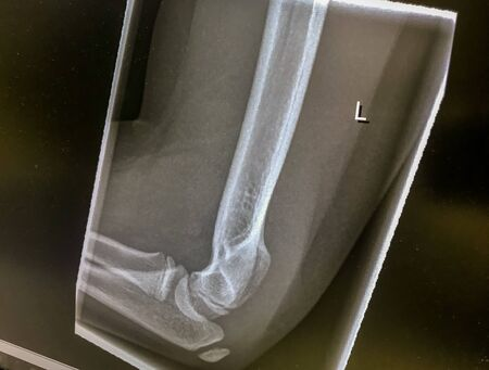 X-ray image from an orthopedist