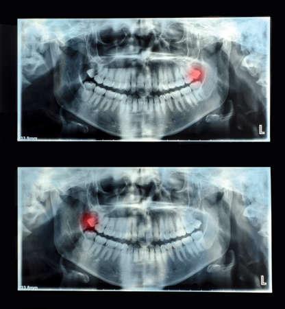 Simples Dentales Panorámicas De Rayos X Fotos, Retratos, Imágenes Y ...