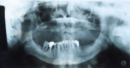 selections: Panoramic dental x-ray of an old person with some lower teeth and no tooth of the upper. No selections