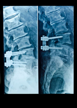 spinal column: X-Ray image of spinal column with screws after surgery in man body