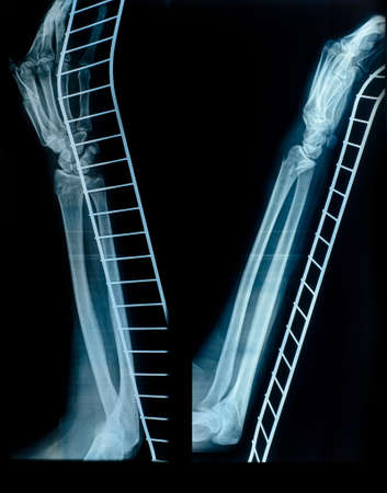 fracture arm: X-Ray image of human hand and arm after a fracture on the metal support. Medical examination