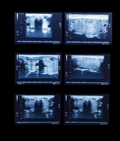 sonography: sonography upper abdomen medical examination for healthcare Stock Photo