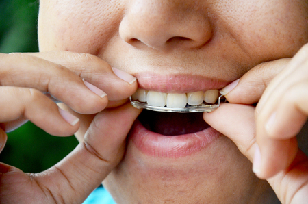 crooked teeth: Thai woman putting Retainer fashion at tooth