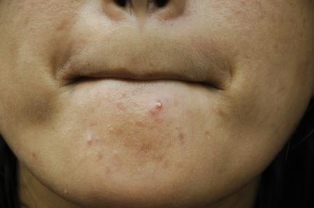 アジアのタイの女性の顔とあごににきびやにきびの閉塞