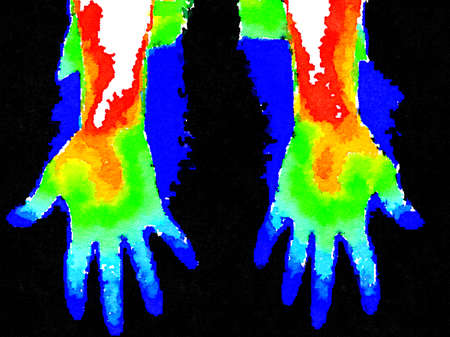 Thermographic image of palm of hands showing different temperature in a range of colors from blue showing cold to red showing hot which can indicate joint inflammation. Imagens