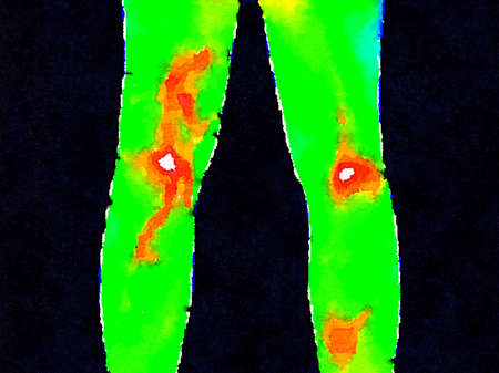 Thermographic image of the backs of legs showing different temperature in a range of colors from green showing cold to red showing hot which can indicate joint inflammation. Shows a varicose vein. Imagens
