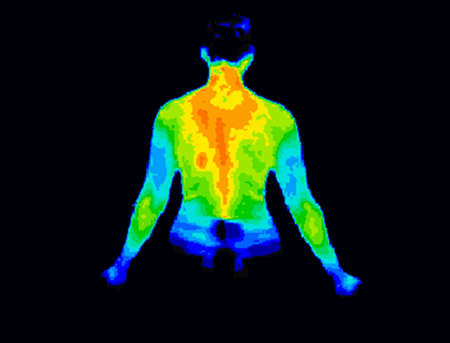 Thermographic image of the back of the upper body showing different temperature in a range of colors from blue showing cold to red showing hot which can indicate joint inflammation.