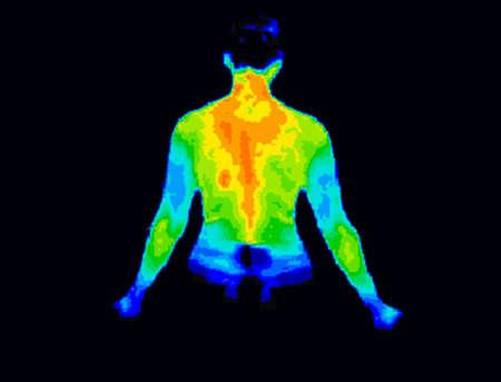 Thermografisch beeld van de achterkant van het bovenlichaam met verschillende temperaturen in een waaier van kleuren van blauw tonen koude naar het rood met warm wat gewrichtsontsteking kan aangeven.