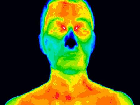Imagen termográfica de un rostro humano mostrando diferentes temperaturas en una gama de colores de azul mostrando frío a rojo mostrando caliente que puede indicar inflamación.