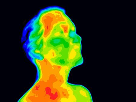 Thermografisch beeld van een menselijk gezicht en nek met verschillende temperaturen in een reeks kleuren van blauw koud tot roodheet. Rood in de nek kan wijzen op verhoogde CR-P-spiegels, dit kan een teken zijn van ontsteking en ontstekingen van de carotisadera die